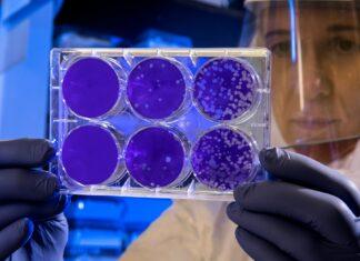 Zapalenie płuc Legionella