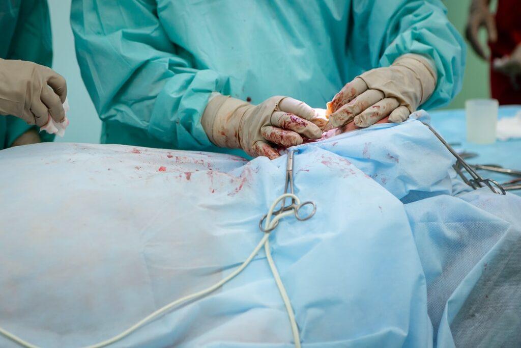 leczenie zapalenia wyrostka robaczkowego