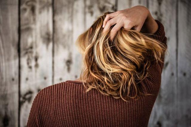 objawy łysienia plackowatego