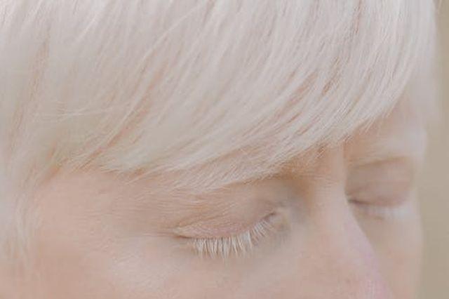 objawy albinizmu