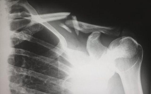 gęstość kości