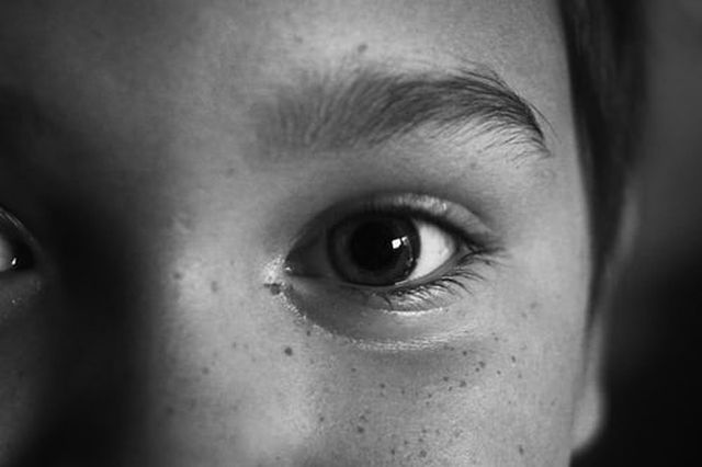 worki pod oczami