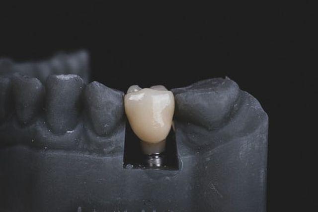 przeciwwskazania do implantów