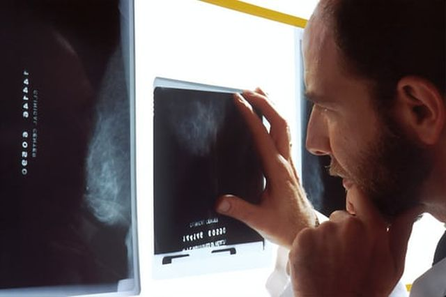 metody diagnostyczna