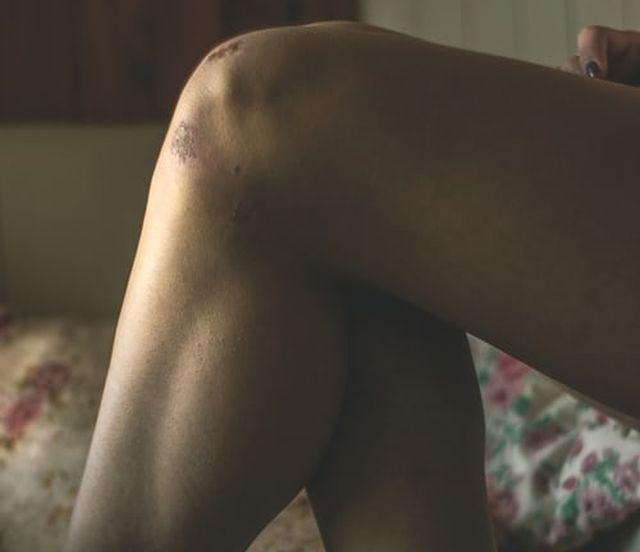 uraz kolana