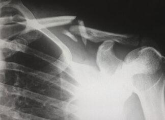 W trosce o swoje zdrowie warto wykonać rezonans magnetyczny